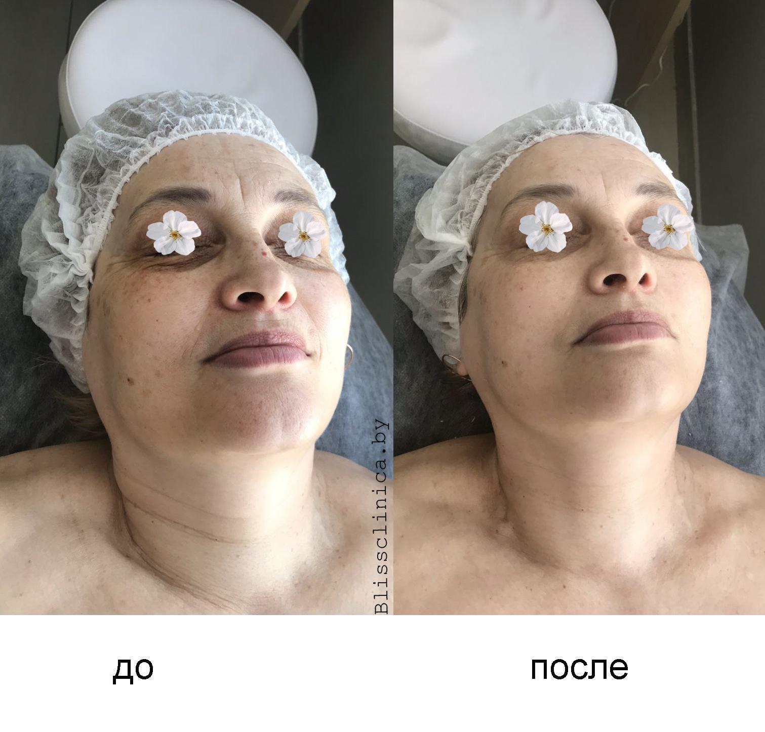 Результат от косметологической процедуры